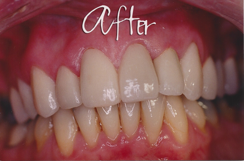 Crown Veneers - After Photo