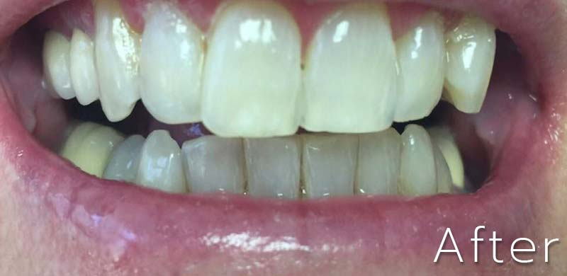 Teeth Whitening - After Picture