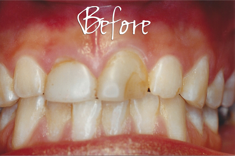 Crown Veneers - Before Photo