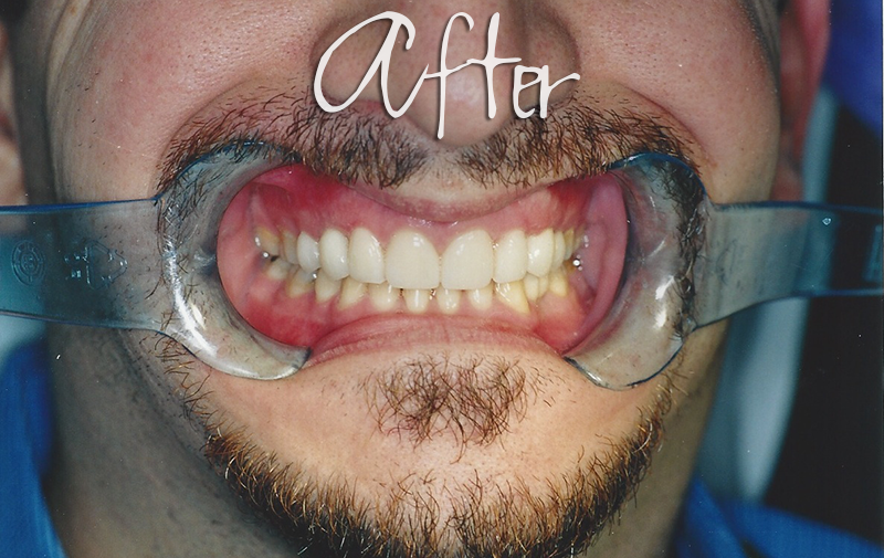 Implant Veneers - After Photo