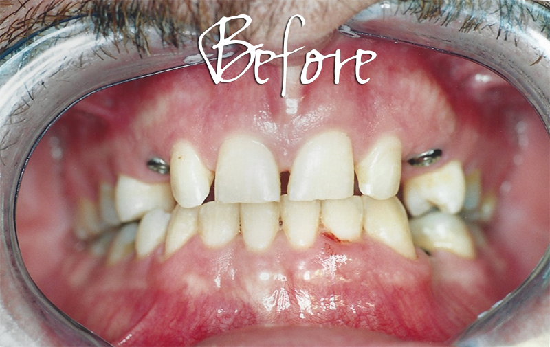 Implant Veneers - Before Photo